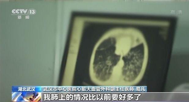 新冠肺炎治愈患者:我们一切都很好