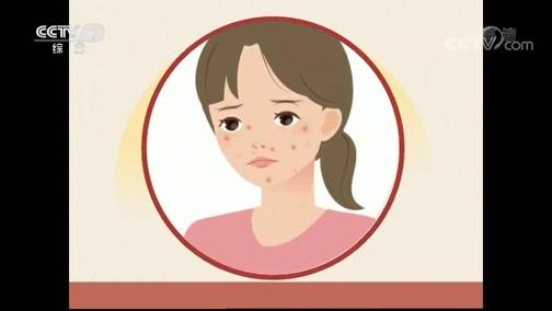 [生活提示]长痘后用手挤 勤洗脸都不可取
