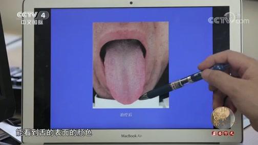 《中华医药》 20190720 观舌知病