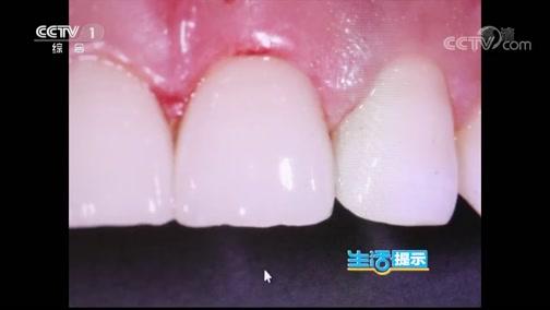 [生活提示]树脂贴面容易刺激牙龈 发生龋齿
