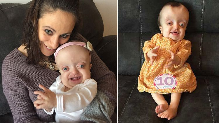 smiley ryley battles condition known as pfeiffer syndrome cctv
