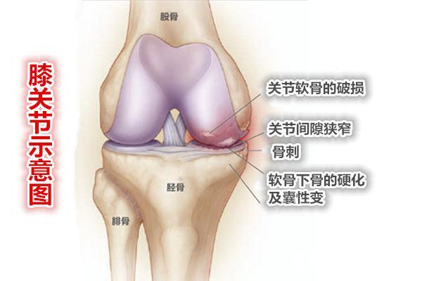 膝关节部位的骨关节炎示意图