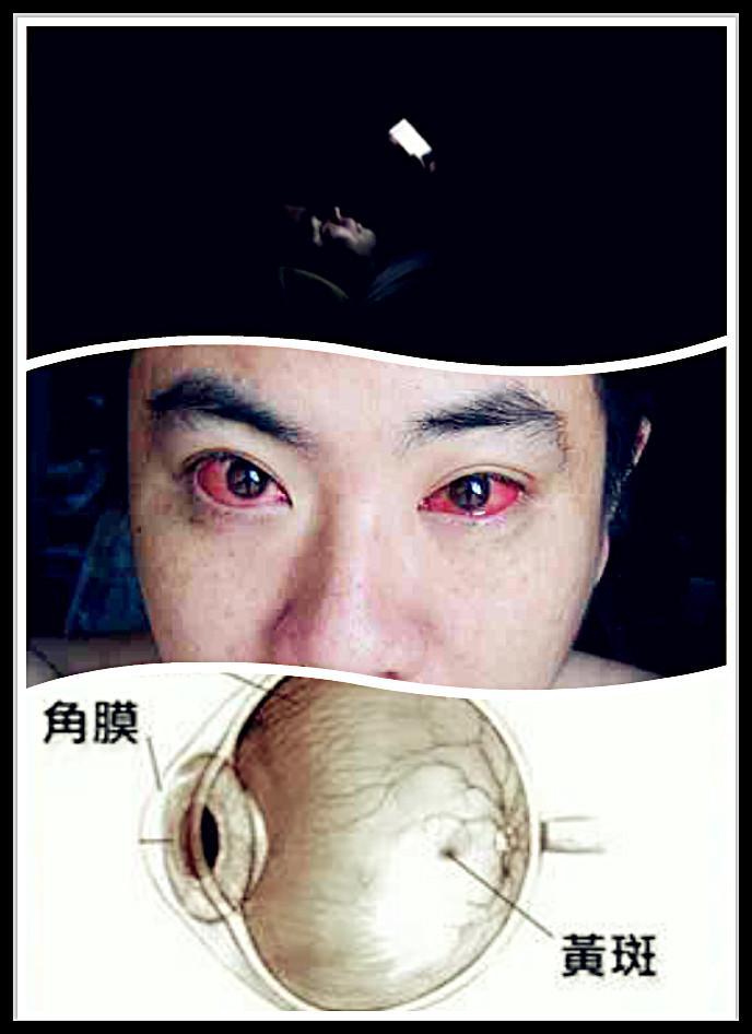 """近日,微信圈里有帖子称:""""人眼睛中有一块很重要的区域叫做黄斑区,而手机强光在黑暗中直射眼睛30分钟以上,就会造成眼睛黄斑部病变,导致视力急剧恶化,患上不可逆的黄斑病。"""""""