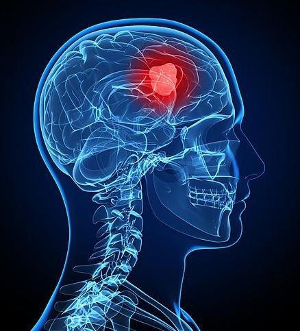 脑肿瘤检查怎么诊断