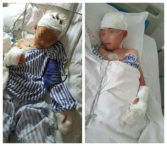 两男童(8岁左、10岁右)均被诊断为颅骨骨折
