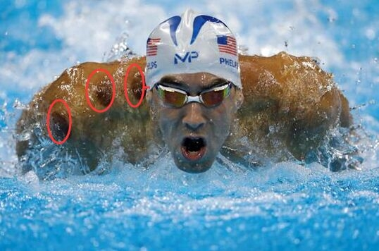 الحجامة الصينية تثير الإنبتاه في أولمبياد ريو