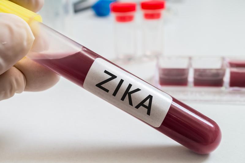 En Singapur reportan 41 infectados por transmisión local de zika