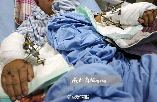 Wei estará en el hopital en mucho tiempo para recuperarse