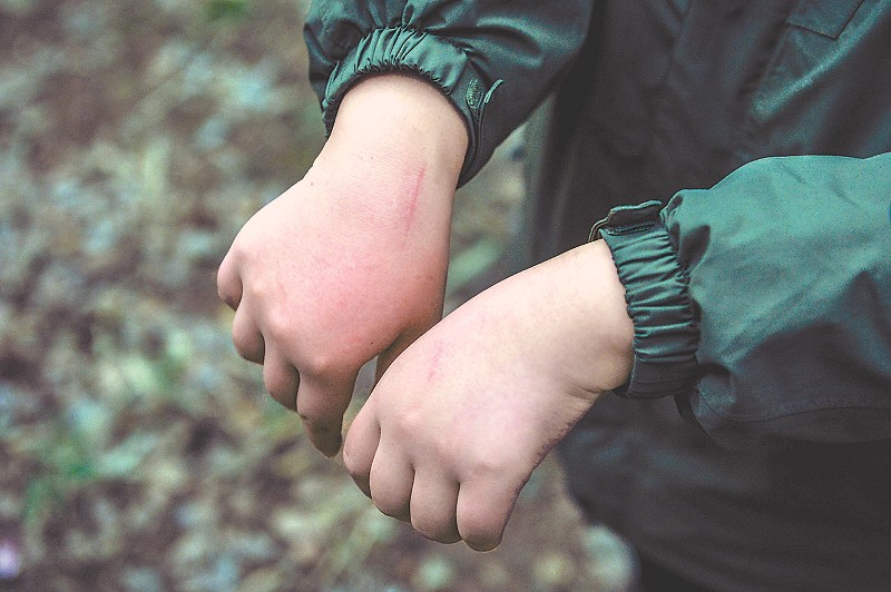 幼年大熊猫很可爱,但爪子和牙齿很尖锐,饲养员常常被抓咬伤。