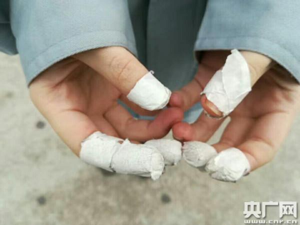 聊城大学安全工程专业一位学生在昆山康佳电子有限公司实习后展示双手
