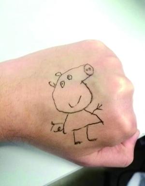 有爱!为逗小患者开心 儿科医生在手上画小猪佩奇