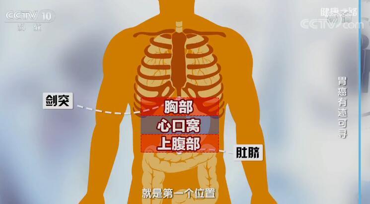 胃癌有迹可寻 哪种胃疼需警惕胃癌?