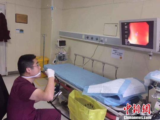 """""""硬核""""医生为体验病人感受给自己做胃肠镜走红网络"""