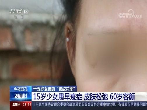 """[24小时]十五岁女孩的""""皱纹花季"""" 15岁少女患早衰症 皮肤松弛 60岁容颜"""