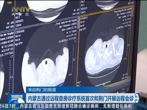 [内蒙古新闻联播]来自荆门的报道 内蒙古通过远程查房诊疗系统首次和荆门开展远程会诊